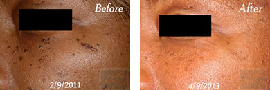 532-laser treatment - Before after gallery image 1