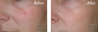 532-laser treatment - Before after gallery image 10