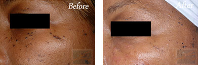 532-laser treatment - Before after gallery image 2