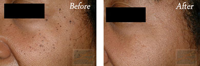 532-laser treatment - Before after gallery image 3