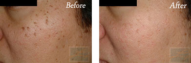 532-laser treatment - Before after gallery image 4