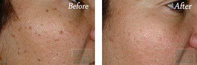 532-laser treatment - Before after gallery image 5