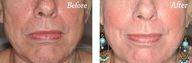 532-laser treatment - Before after gallery image 6