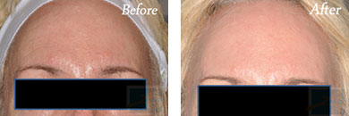 532-laser treatment - Before after gallery image 7