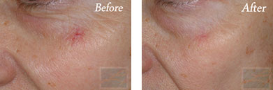 532-laser treatment - Before after gallery image 8