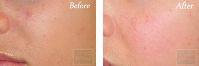 532-laser treatment - Before after gallery image 9