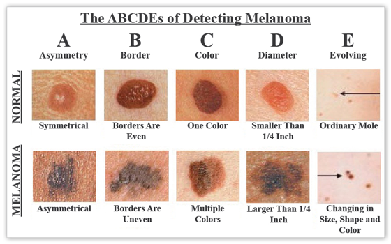 Skin Cancers New Orleans -  Skin Cancers ABCDEs Of Detecting malanoma