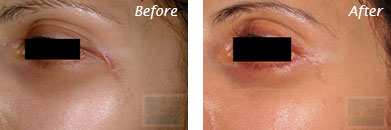 Eyes - Before and After Case 19