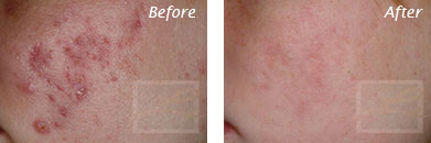 Acne & Acne Scarring - Before and After Case 13