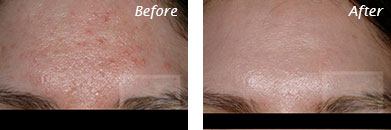 Acne & Acne Scarring - Before and After Case 15