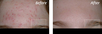 Acne & Acne Scarring - Before and After Case 16