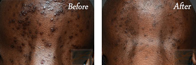 Acne Treatment - Before after gallery image 2