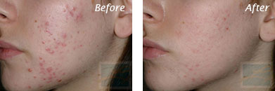 Acne & Acne Scarring - Before and After Case 21