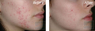 Acne & Acne Scarring - Before and After Case 22
