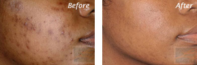 Acne & Acne Scarring - Before and After Case 23