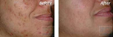 Acne & Acne Scarring - Before and After Case 24