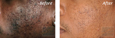Acne & Acne Scarring - Before and After Case 25