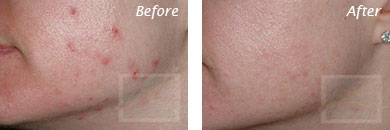 Acne & Acne Scarring - Before and After Case 30