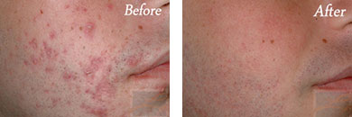 Acne Treatment - Before after gallery image 3