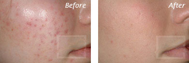 Acne & Acne Scarring - Before and After Case 31