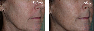 Acne & Acne Scarring - Before and After Case 26