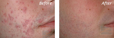 Acne & Acne Scarring - Before and After Case 5