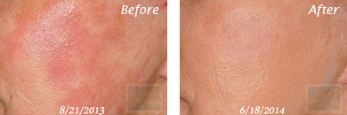 Facial Redness and Rosacea - Before and After Case 2