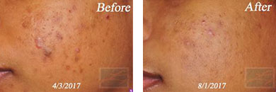 Acne & Acne Scarring - Before and After Case 2