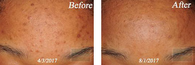 Skin care - Before after gallery image 1