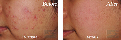 Acne & Acne Scarring - Before and After Case 38