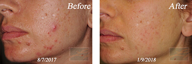 Acne & Acne Scarring - Before and After Case 39