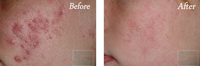 Acne Treatment - Before after gallery image 4