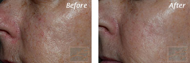 Acne & Acne Scarring - Before and After Case 8