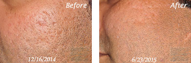Acne & Acne Scarring - Before and After Case 9