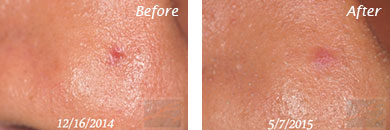 Texture, Pores & Discoloration - Before and After Case 53