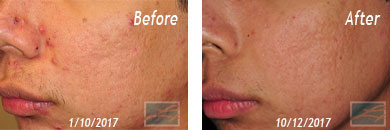 Acne Treatment Before and After Patient Results in New Orleans, LA