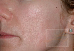 Acne & Acne Scarring Before and After Photos New Orleans - Acne & Acne Scarring Case 10, Before