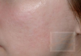 Acne & Acne Scarring Before and After Photos New Orleans - Acne & Acne Scarring Case 12, Before