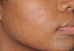 Acne & Acne Scarring Before and After Photos New Orleans - Acne & Acne Scarring Case 15, After
