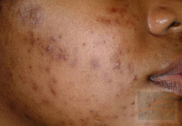 Acne & Acne Scarring Before and After Photos New Orleans - Acne & Acne Scarring Case 15, Before