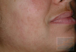 Acne & Acne Scarring Before and After Photos New Orleans - Acne & Acne Scarring Case 16, After