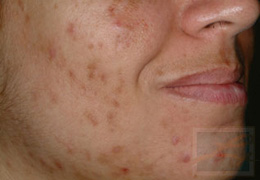 Acne & Acne Scarring Before and After Photos New Orleans - Acne & Acne Scarring Case 16, Before