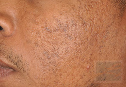 Acne & Acne Scarring Before and After Photos New Orleans - Acne & Acne Scarring Case 17, After