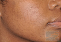 Acne & Acne Scarring Before and After Photos New Orleans - Acne & Acne Scarring Case 18, After