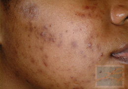 Acne & Acne Scarring Before and After Photos New Orleans - Acne & Acne Scarring Case 18, Before