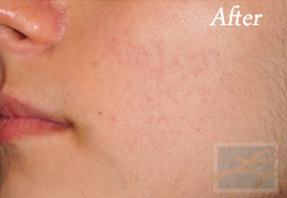 Acne Treatments - Case 19, After