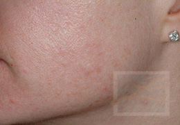 Acne & Acne Scarring Before and After Photos New Orleans - Acne & Acne Scarring Case 2, After