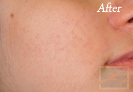 Acne Treatments - Case 20, After
