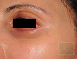 Acne & Acne Scarring Before and After Photos New Orleans - Acne & Acne Scarring Case 21, After