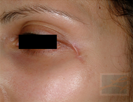 Acne & Acne Scarring Before and After Photos New Orleans - Acne & Acne Scarring Case 21, Before
